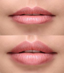 Labios antes y despues del tratamiento