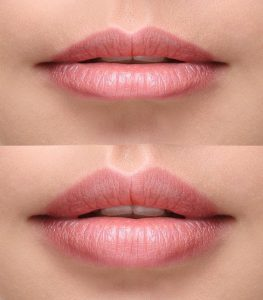 labios antes y despues